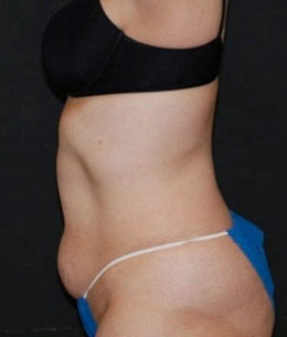 Actual VASER Shape Photo Results by Woodlands Wellness & Cosmetic Center