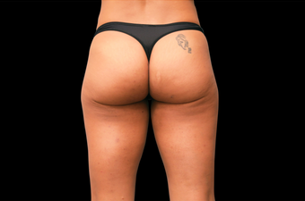 EMSCULPT Butt Lift