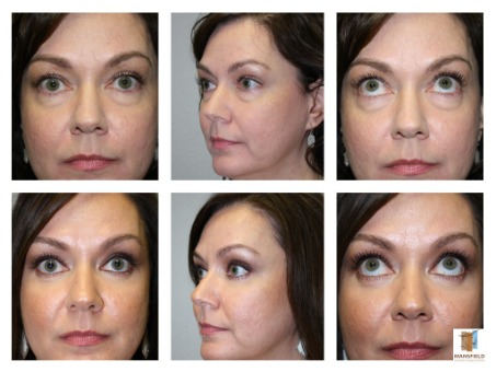Lower Blepharoplasty + CO2 Laser