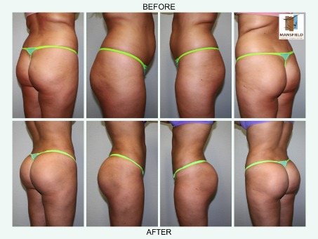 Buttock Augmentation Before And After Photos Ahb
