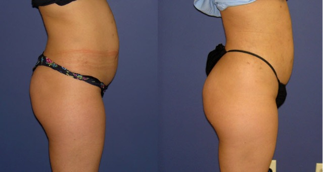 Pre/Post SmartLipo and Grafting - 3 Weeks