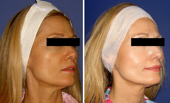 Image result for prp facelift