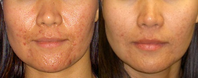 Laser Genesis For Acne