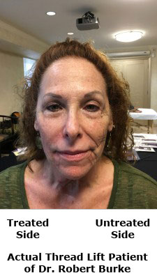 ThreadLift Facelift Result