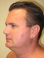 SmartLipo to Neck and Jowls