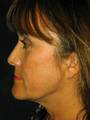 Blepharoplasty, Browlift and SmartLipo Patient
