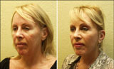 Whisper Lift - Awake Facelift