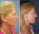 Lunchtime Necklift with Smartlipo