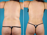 Before and After of PowerX Liposuction