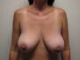 38 yo Breast Reduction Surgery