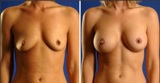 Breast Augmentation With High Profile Silicone Gel