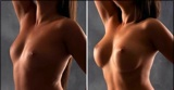 Breast Augmentation With Moderate Plus Profile Silicone Gel Implants
