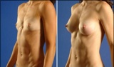 Breast Augmentation With Silicone Breast Implants