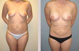 45 Year Old Female Liposuction and Breast Augmentation