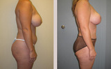 39 Year Old Female Vaser Liposuction and Breast Lift