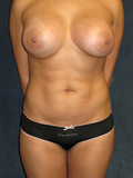 34 Year Old Female SmartLipo and Silicone Breast Implant
