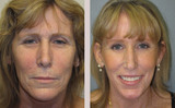 52 Year Old Female Facelift