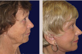 74 Year Old Female Facelift