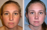 29 Year Old Female Rhinoplasty