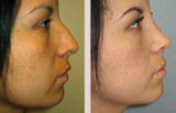 25 Year Old Female Rhinoplasty