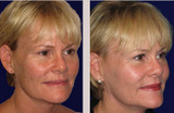 52 Year Old Female Micro Laser Peel and Fractional C02 Laser Resurfacing