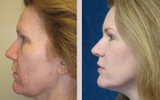 42 Year Old Female Profractional Laser Resurfacing
