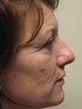 48 yo Facial Plastic Surgery, Laser Resurfacing, Eyelid Surgery