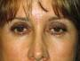53 year old female with Blepharoplasty, Browlift and SmartLipo