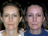 Chemical Peel, Affirm, Fraxel, Fractional Resurfacing