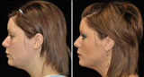 Neck Lift, Smartlipo, Mini Facelift, Facelift
