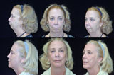 Chin Surgery, Facelift