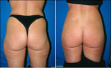 Buttocks Augmentation using Fat Transfer by Dr. Thomas Barnes