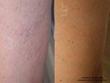 Laser Vein Removal by Dr. David Verebelyi