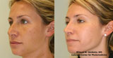 Intense Pulse Light (IPL) Results by Dr. David Verebelyi