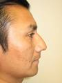 40 yo Rhinoplasty Surgery