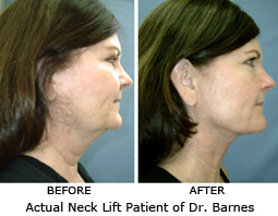 Actual Photos of Shrink Neck Lift by Dr. Thomas Barnes