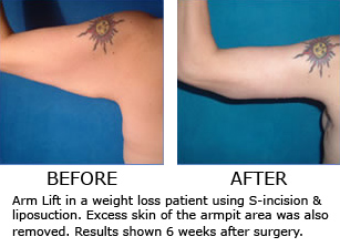 Surgical Arm Lift Brachioplasty Discussed On Quot The