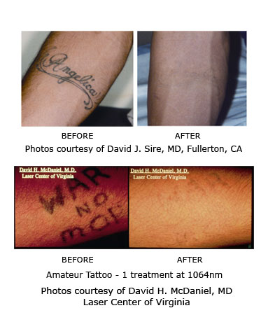 Tattoo Removal in Saratoga California