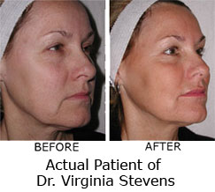 Non Surgical Face Lift Photos News Cost Reviews