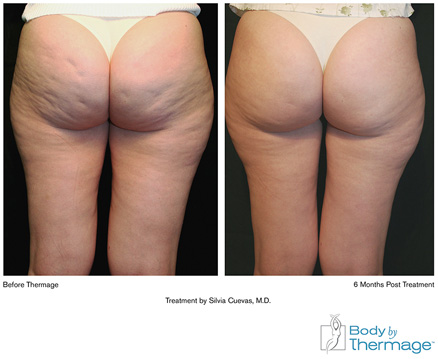 Before and After photos of Thermage for Cellulite Treatment