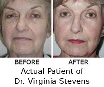 Non-Surgical Face Lift: Photos, News, Cost, Reviews, Locate Provider