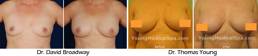 stem cell breast augmentation before and after