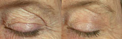 Pearl Fractional for youthful eyes, fractional resurfacing for eyes