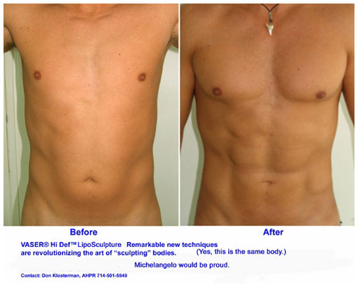 Actual Before and After Photo of Denver Vaser Hi-Def by Dr. David ...