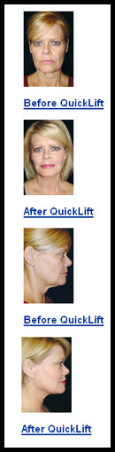 Before and afters for Quicklift